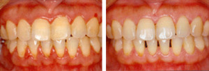 Scaling -dental cleaning before and after