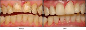 tooth colour fillings