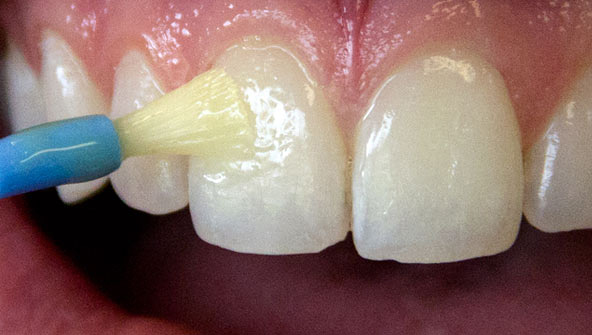 how to clean fluoride varnish